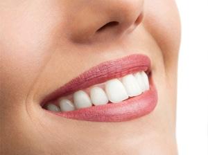sorriso donna dentista