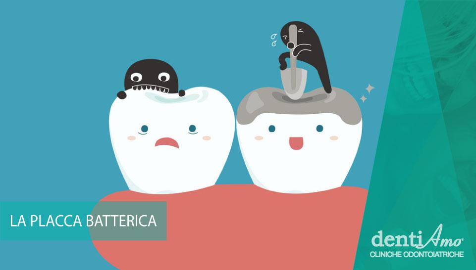 Cosa è la placca batterica e come combatterla