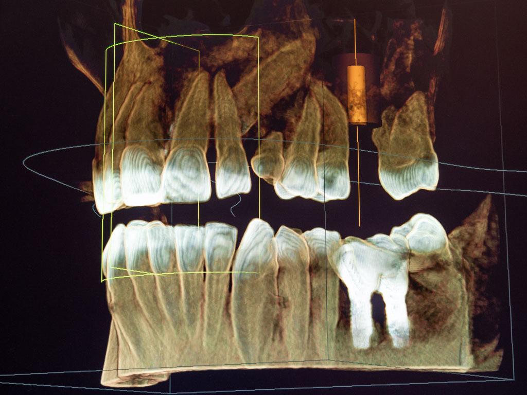 Radiografia impianti a carico immediato