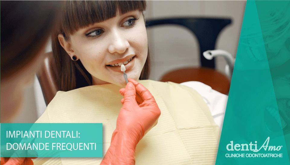 FAQ-impianti-dentali