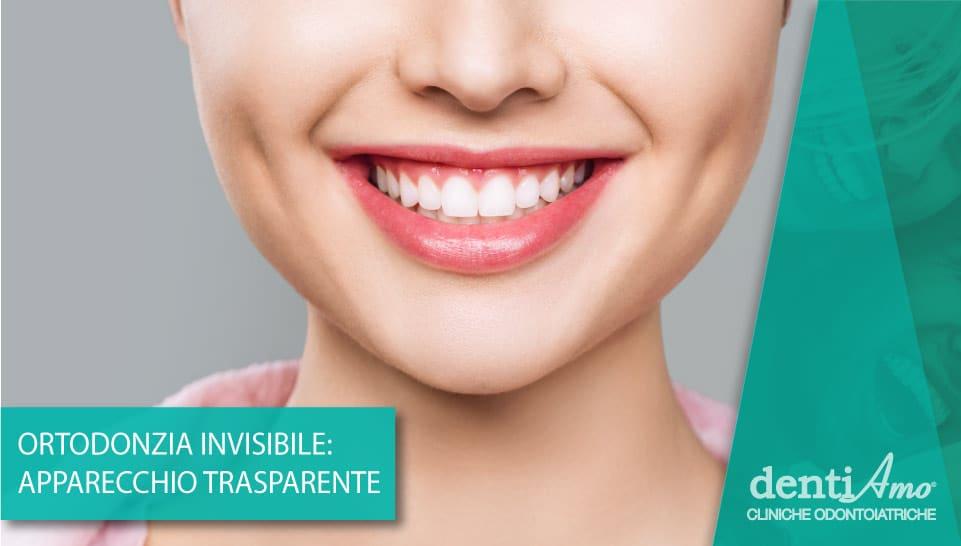 Ortodonzia invisibile: denti perfetti senza disagi estetici